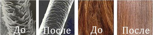 Лобковые волосы выпадают